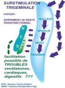Surstimulation trigéminale